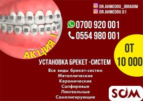Установка Брекет Систем в Бишкеке по акции